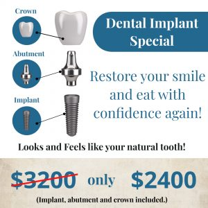 Dental Implant Special - Only $2400